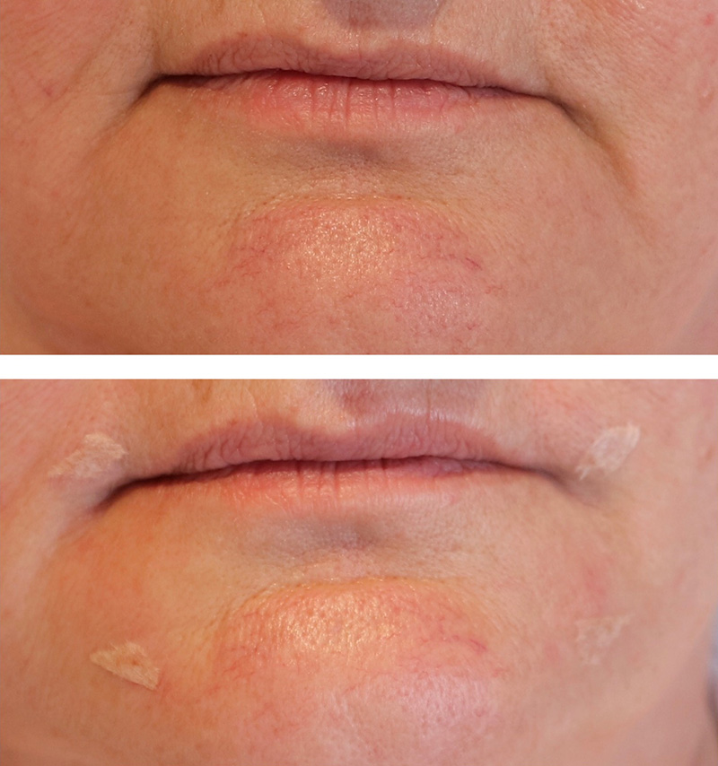 dermal filler results 6 image