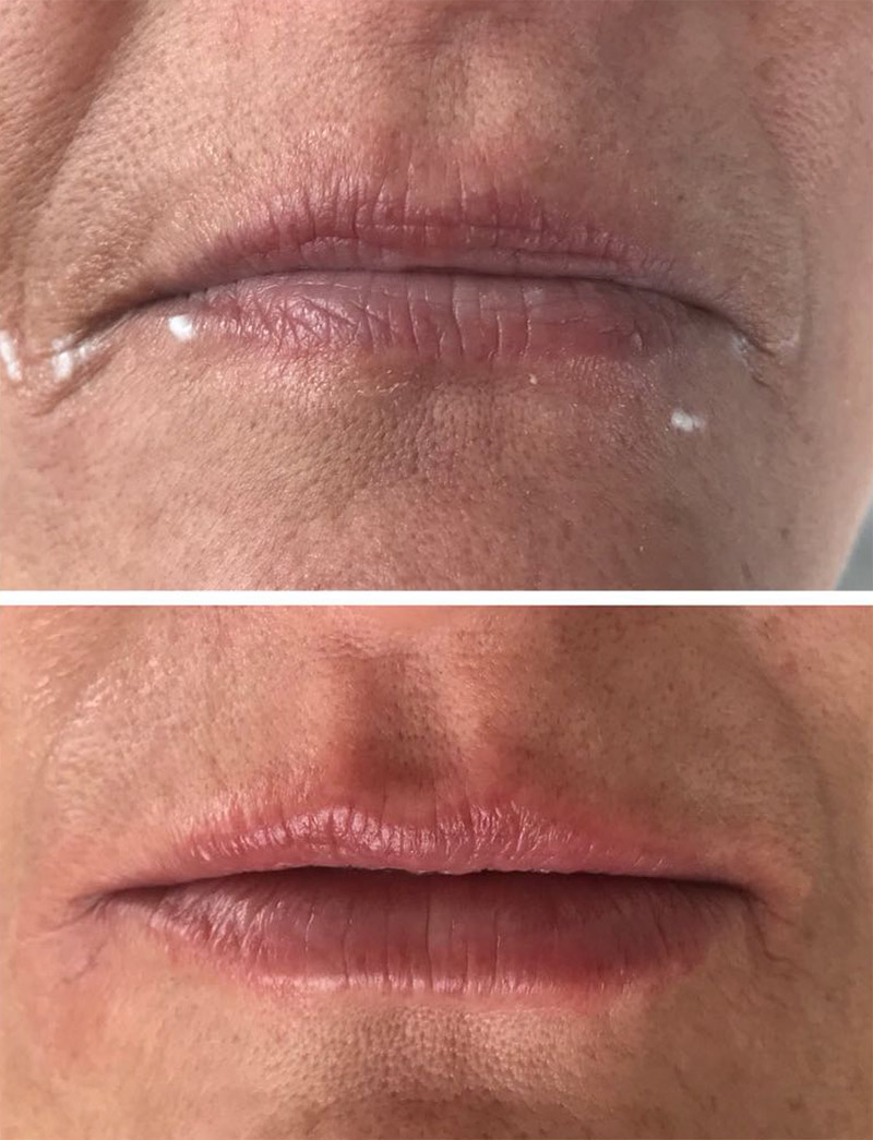 dermal filler results 7a image