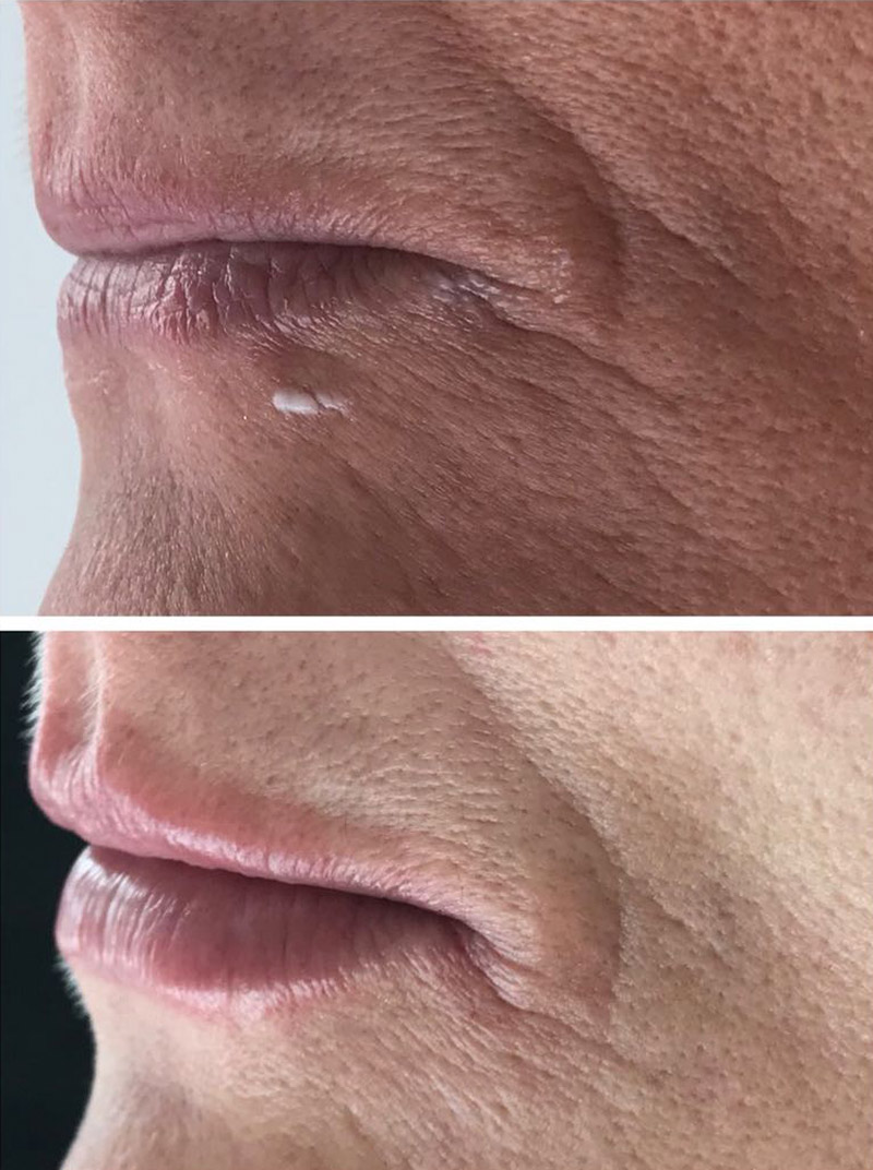 dermal filler results 7b image