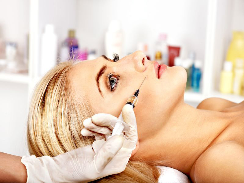 dermal fillers explained before after image