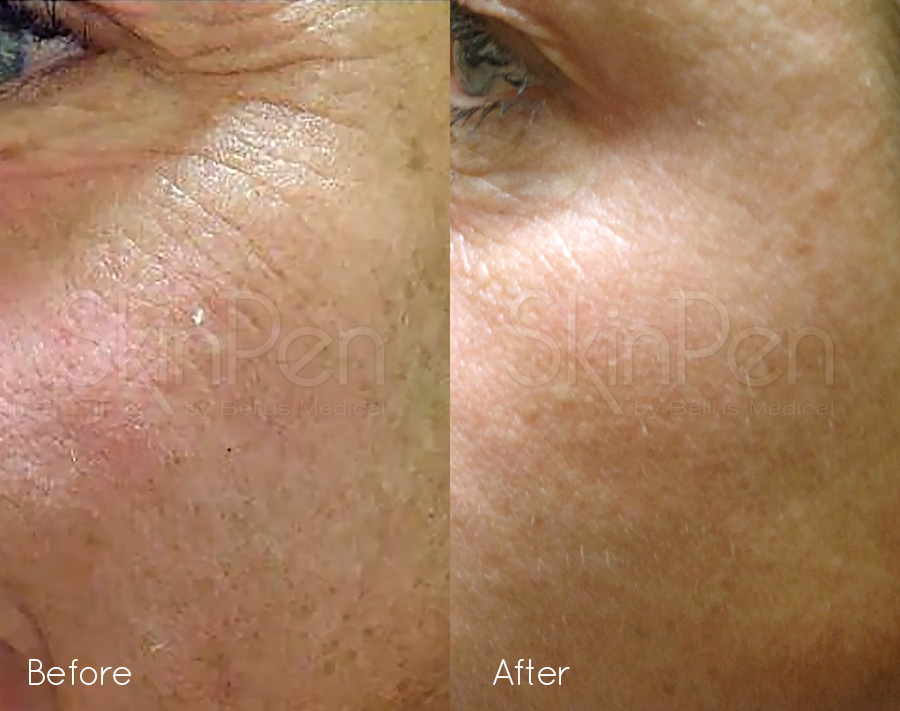 skinpen precision before after 1 image