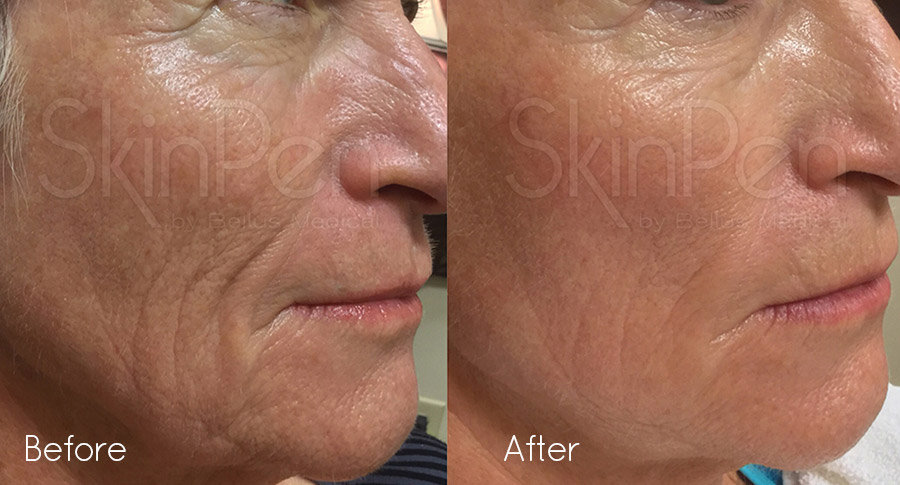 skinpen precision before after image 3
